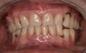 implante dental completo